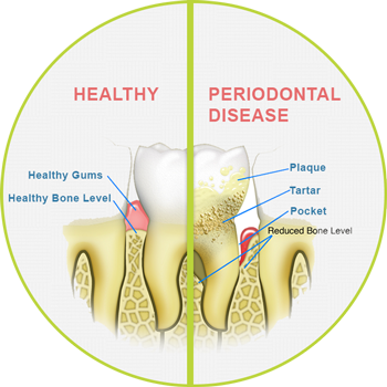 Dubuque Periodontal Disease