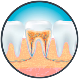 Root Canal Therapy Dubuque